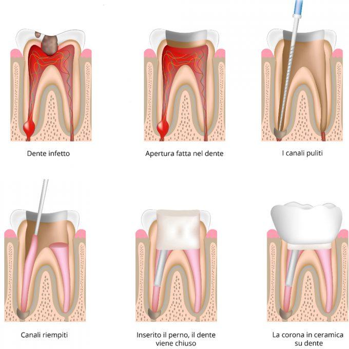 Endodonzia- Studio medico dentistico Di Conza Foggia