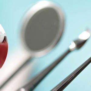 Implantologia - Studio dentistico Di Conza Foggia