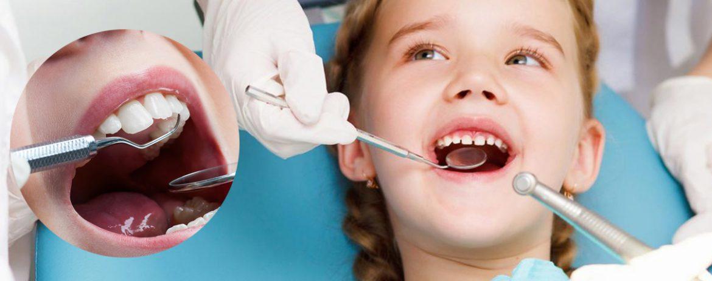 Odontoiatria Pediatrica - Studio dentistico Di Conza Foggia