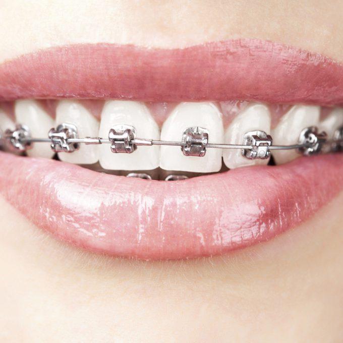 Ortodonzia- Studio dentistico Di Conza Foggia