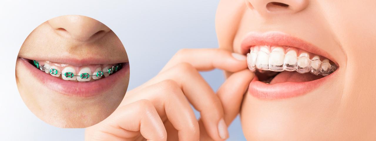Ortodonzia - Studio dentistico Di Conza Foggia