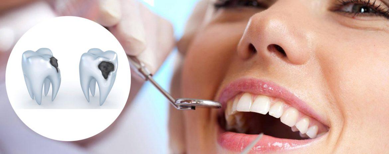 Odontoiatria Conservativa - Studio dentistico Di Conza - Foggia