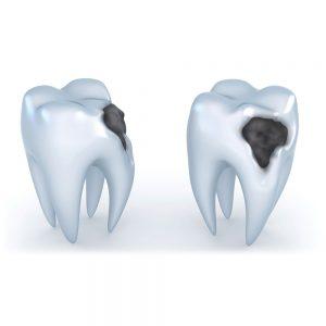 Ortononzia conservativa - Studio dentistico Di Conza - Foggia