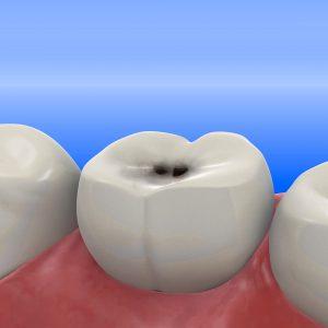 ortodonzia conservativa foggia