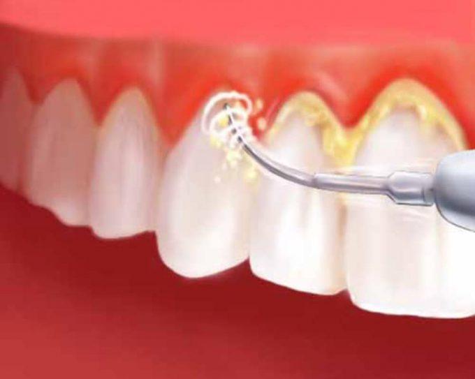 La pulizia dei denti o ablazione del tartaro