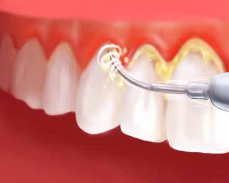 La pulizia dei denti o ablazione del tartaro a Foggia