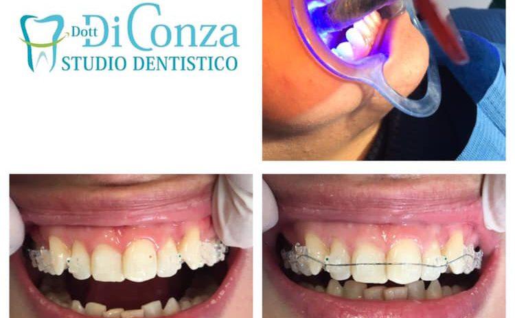 attacchi ortodontici trasparenti