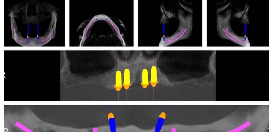 riabilitazione implanto-protesica