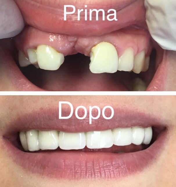 Riabilitazione estetica e funzionale in ceramica dell'arcata dentale superiore