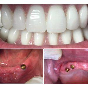 impianti-dentali