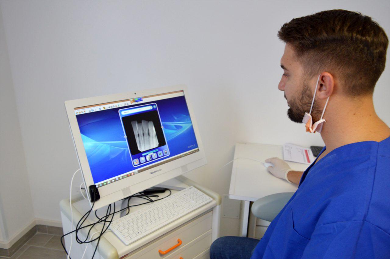 radiografia-dentale