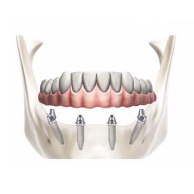 implantologia dentale Foggia